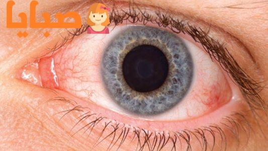 جفاف العين