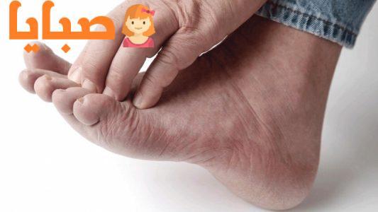 فطريات القدم أعراضها وأسبابها وطرق علاجها
