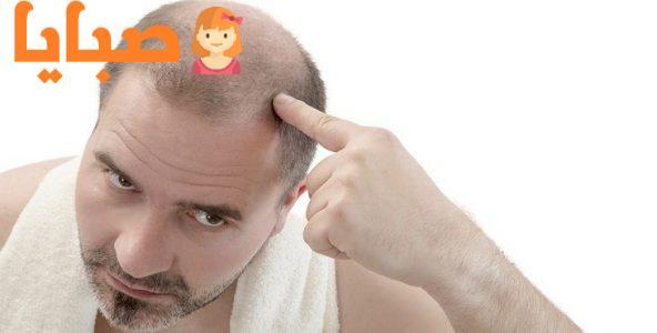 علاج تساقط الشعر عند الرجال
