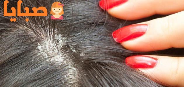 علاج قمل الرأس ونصائح للأمهات لتفادي إصابة أطفالهن بقمل الشعر 1