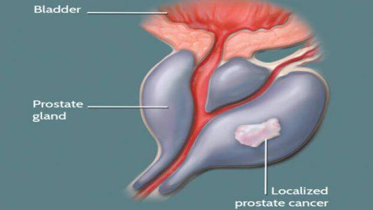 علاج البروستاتا بالاعشاب وصفة فعالة باستخدام بذور القرع