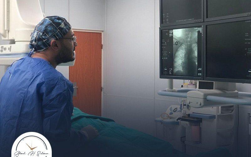 أسعار عمليات الأشعة التداخلية – الدكتور أحمد سليمان